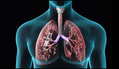 COPD, Pneumonia