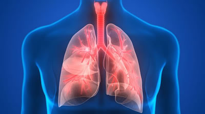 COPD and Pneumonia The requirement for code J44.0